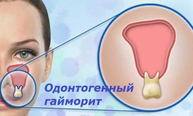 Арлет используют для лечения одонтогенныех инфекций