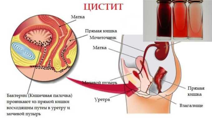 Превышение нормы крови в моче, цистит, нарушение процесса мочеиспускания могут появится при передозировке препаратом Нурофен плюс