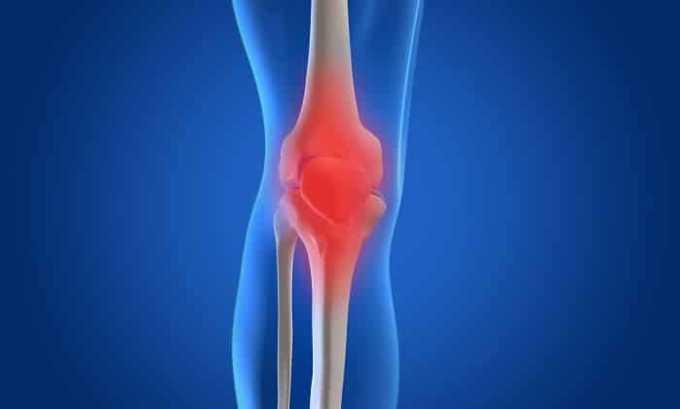 Показанием к применению препарата Нимедар является остеоартрит