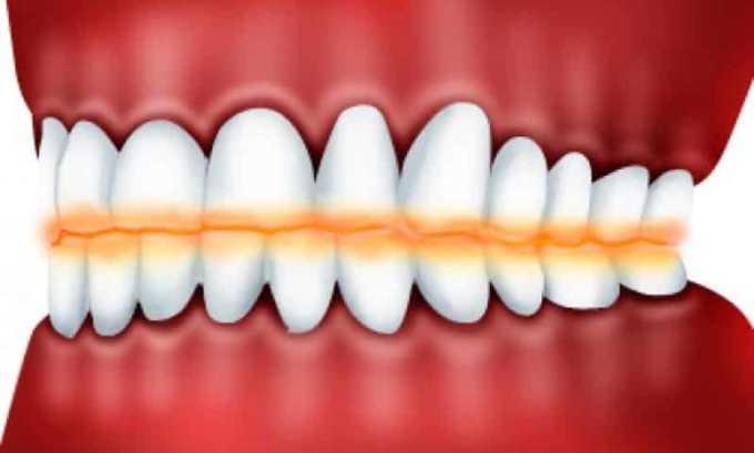 Кетанов назначают при патологии зубов