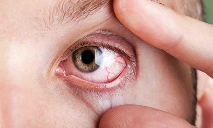 Порошок применяется при аллергических поражениях органов зрения