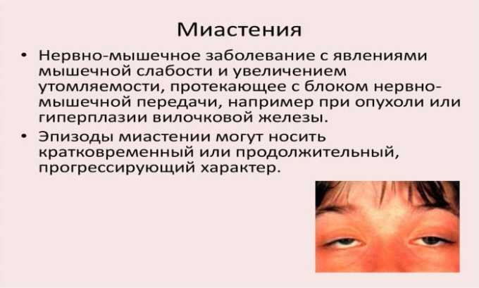 Лекарственное средство противопоказано при миастении