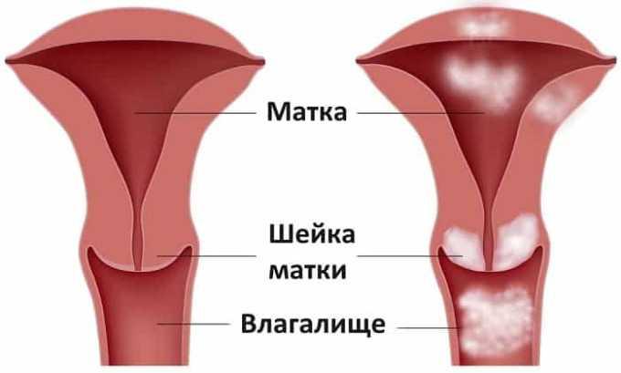 Эндоксан назначают при раке шейки матки