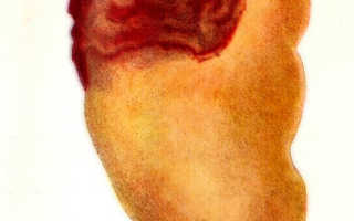 Абсцесс почки — симптомы, диагностика и лечение