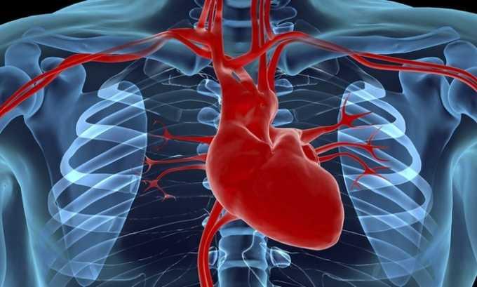 Применять средство для проведения терапии следует при ишемической болезни сердца