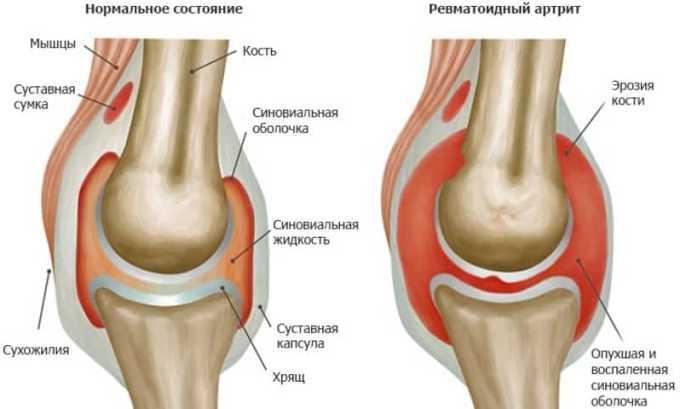 Нимесулид назначают при ревматоидном артрите