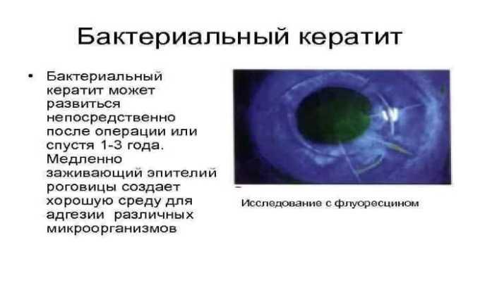 Препарат используется для лечения бактериального кератита