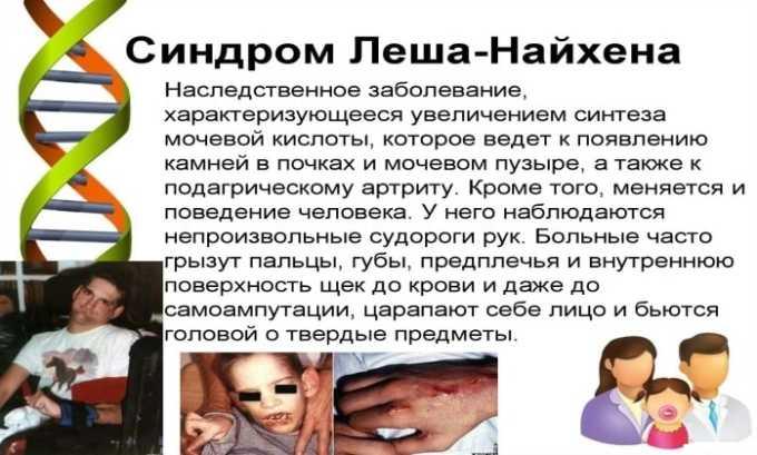 Препарат применяется при синдроме Леша-Нихана