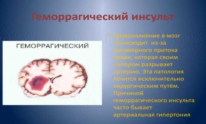 Препарат не применяется при геморрагическом инсульте
