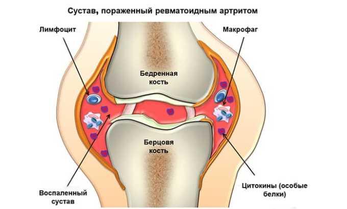 Медикамент применяют для лечения ревматоидной разновидности артрита
