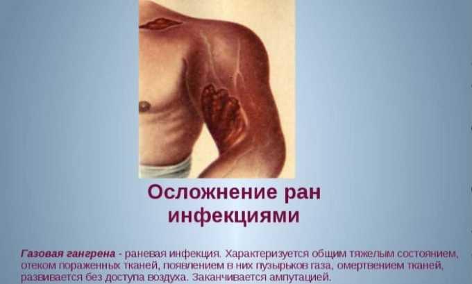 Фурамага 50 применяют при при присоединении вторичной инфекции к ожогам и раневым поверхностям