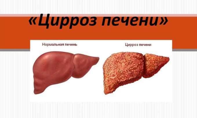 Препарат назначается при циррозе печени