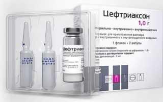 Цефтриаксон — средство для борьбы с инфекционными заболеваниями почек