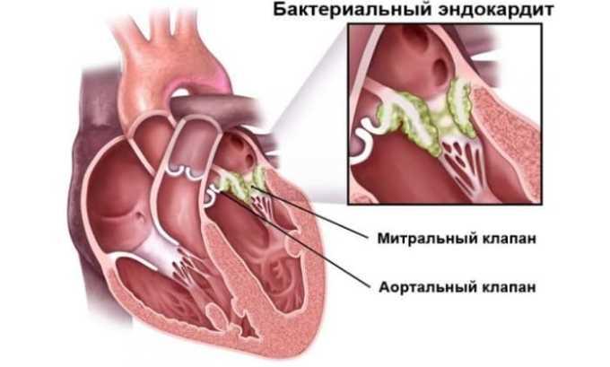 Цефтриаксон показан при эндокардите