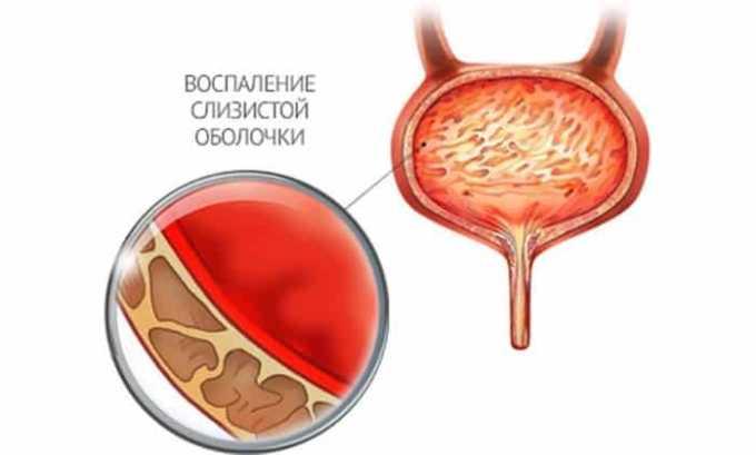 При дальнейшем прогрессировании патологии происходит отмирание слизистых оболочек (некроз) с дальнейшим наполнением полости экссудатом