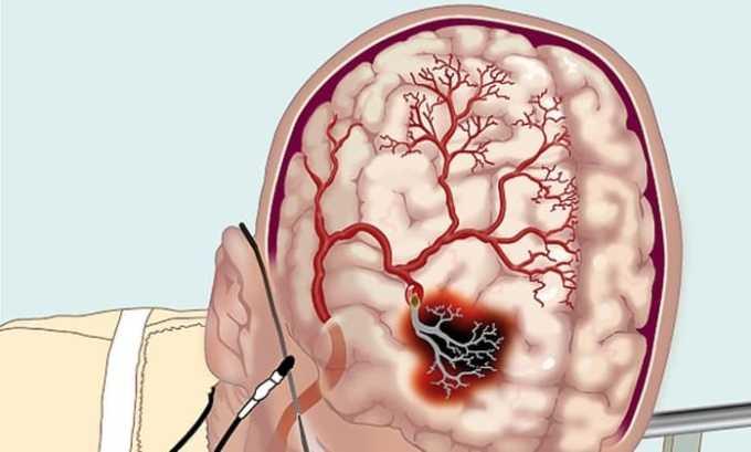 Препарат следует принимать с осторожностью при нарушении кровообращения в мозгу