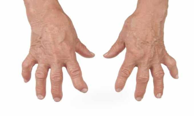 Препарат применяют при обострение ревматоидного артрита