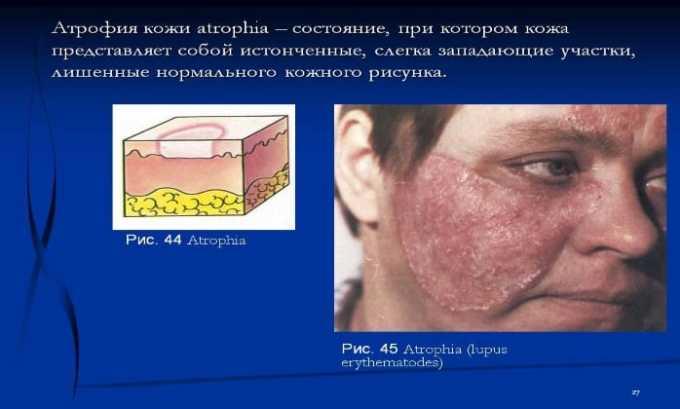 Применение мази наружно может вызвать атрофию кожи