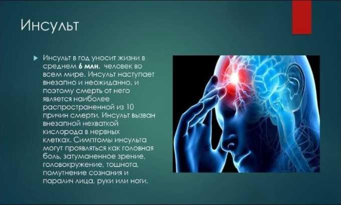 Аспирин часто назначают для профилактики наступления инсульта