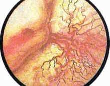 Язва мочевого пузыря — виды, причины, симптомы и лечение
