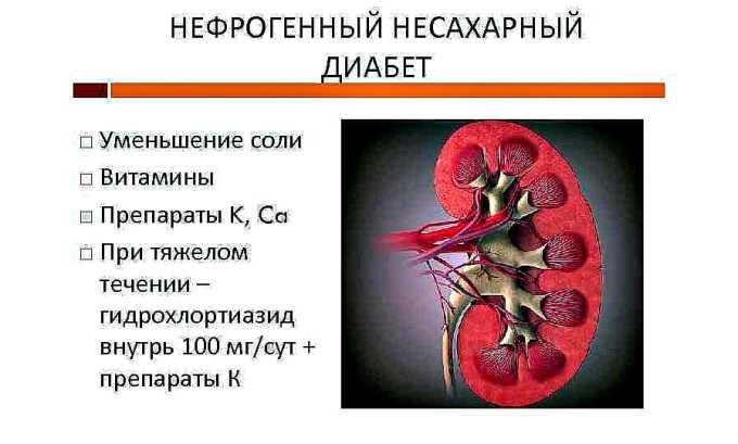 Препарат назначается при нефрогенном несахарном диабете