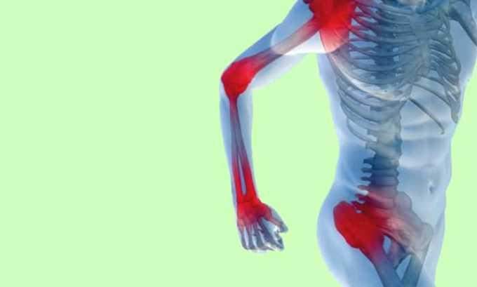 Также лекарство можно применять при суставных болях