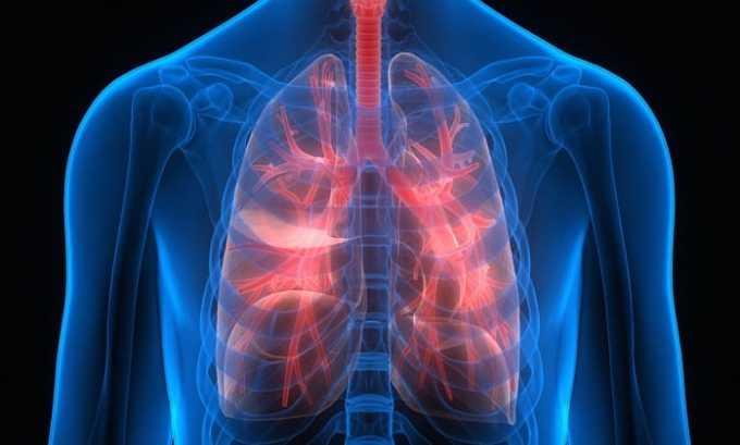 Применять препарат можно как при осложненных, так и при неосложненных инфекционных заболеваниях дыхательных путей