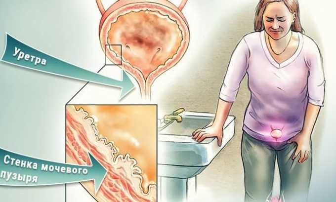 При уретрите возникает повышенная концентрация плоскообразных клеток