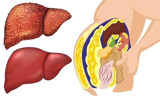 Развитие патологических процессов, которые сопровождаются проникновением жира в печень - показание к применению препарата
