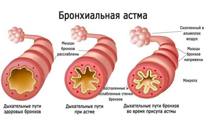 Препарат противопоказан при приступах бронхиальной астмы
