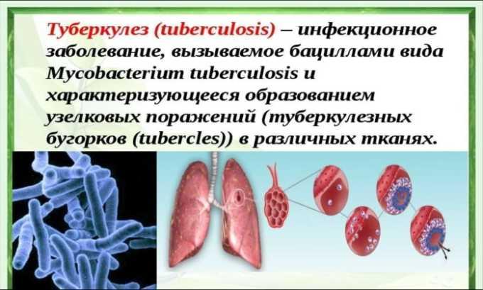 Препарат используют при туберкулезе
