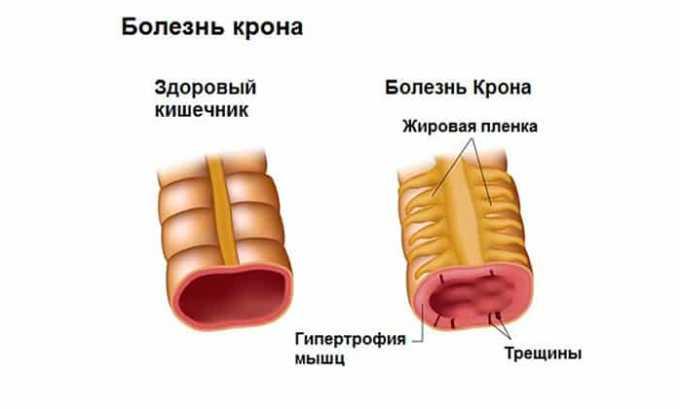Исключить применение Олфена 75 при болезни Крона