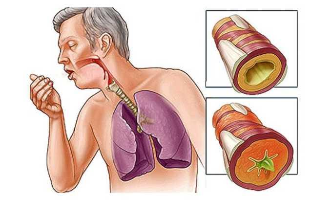 Арлет используют для лечения инфекций в нижних отделах дыхательных путей