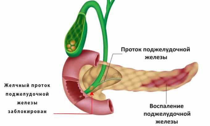 Для снятия боли слабой и умеренной интенсивности показанием к назначению является панкреатит