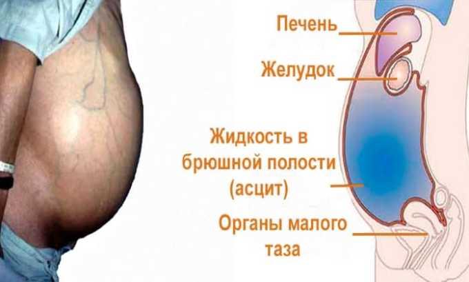 Лекарственный препарат применяется в клинической практике для устранения злокачественного асцита