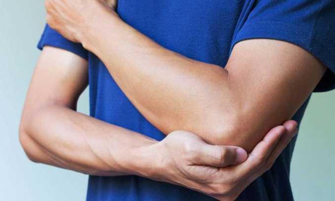 При повреждении суставов выписывают Кетанов