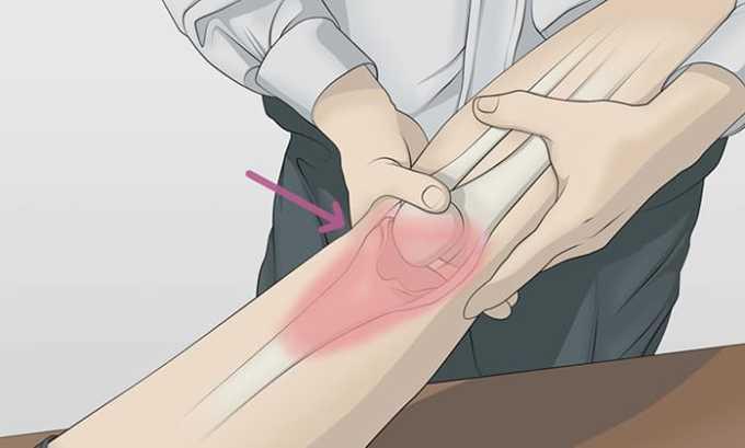Медикамент применяется в составе комплексной терапии для лечения воспаления мягких тканей или сустава после травмы