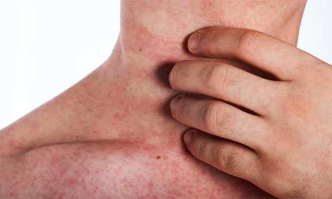 При наружном применении антибиотика наблюдаются следующие нежелательные последствия - зудящие кожные высыпания