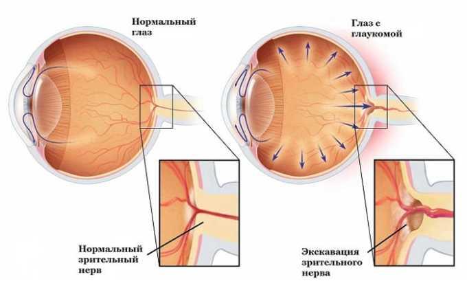 Таблетки назначаются с осторожностью при глаукоме