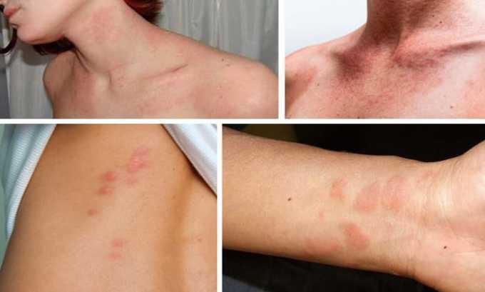 В нескорых случаях возможные такие побочные эффекты как аллергические реакции