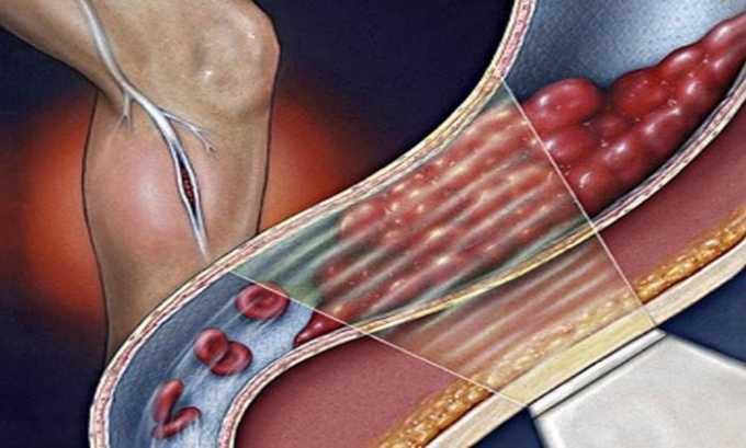 Препарат противопоказан при тромбофлебите