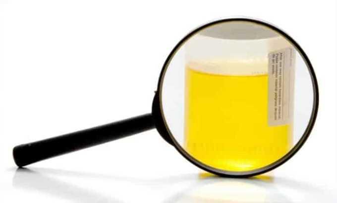 При длительном и бесконтрольном применении появляются такие симптомы как возникновение белка в моче