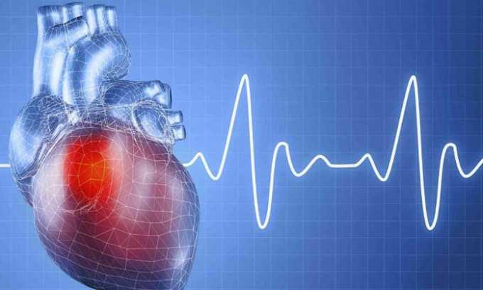 Учащенное сердцебиение может быть причиной приёма препарата