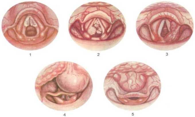 Препарат применяется при папилломатозе гортани