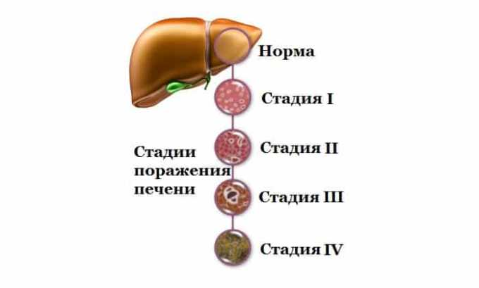 Препарат противопоказан при печеночной недостаточности
