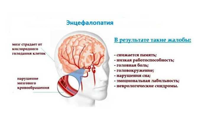 Терапевтический курс может спровоцировать развитие энцефалопатии