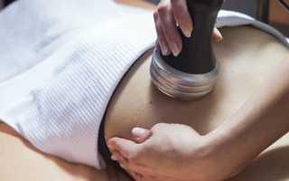 Применение физиотерапии при цистите: методы и их польза