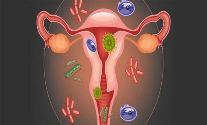 Диклофенак применяют при гинекологических патологиях с выраженным болевым синдромом и воспалением