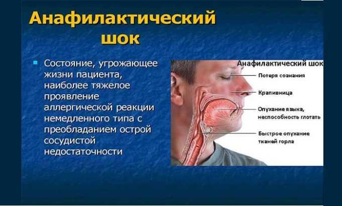 Побочным действием от препарата может быть анафилактический шок