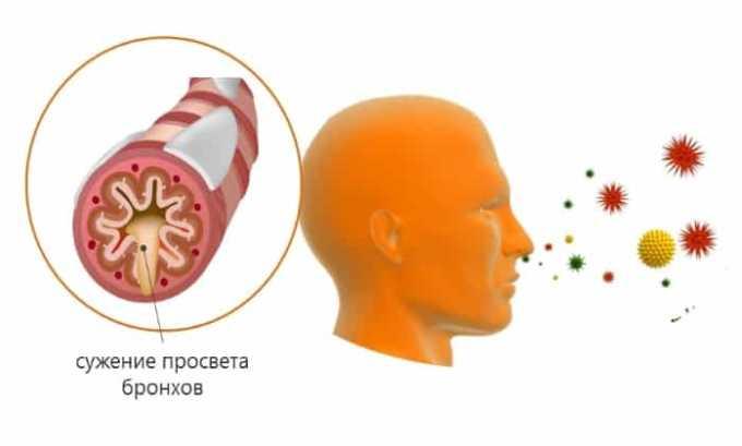 Прием препарата запрещен при склонности к сужению бронхов